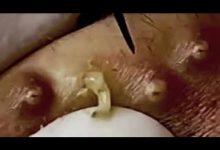 صورة علاج الوجه متوهجة تقنية العناية بالبشرة الشباب حب الشباب حب الشباب الكيسي ظهرت للعميل  #145
