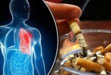صورة التدخين يسبب انسداد رئوى يحد من قدرة المدخن على مواجهة كورونا.. دراسة تؤكد